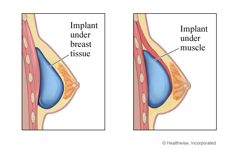 over or under the muscle know your options for breast